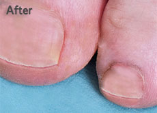 Toe Nail Fungus Treatment | Clear Toe Nail